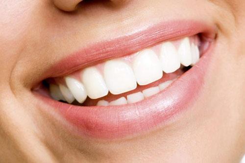 THE ANNEX SPA - Teeth Whitening